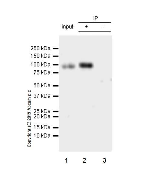 Immunoprecipitation - Anti-CD105 antibody [EPR19911-220] (ab252345)