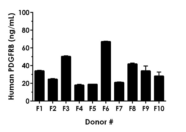 Serum 10% from ten individual healthy human female donors was measured in duplicate.
