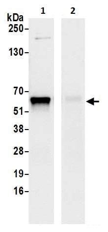 Immunoprecipitation - Anti-METTL14 antibody (ab252562)