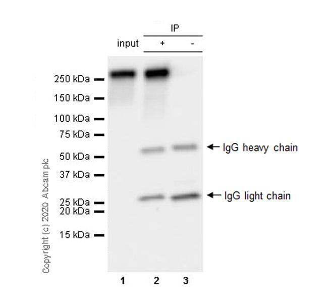 Immunoprecipitation - Anti-RNA polymerase II CTD repeat YSPTSPS (phospho S7) antibody [4E12] (ab252853)