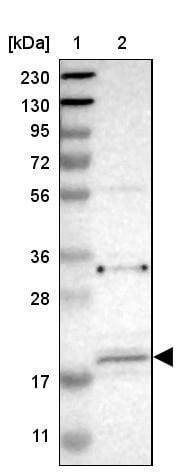 Western blot - Anti-JWA antibody (ab252960)