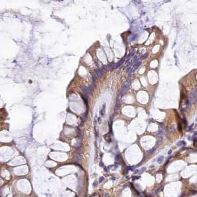 Immunohistochemistry (Formalin/PFA-fixed paraffin-embedded sections) - Anti-GlnRS antibody (ab252974)