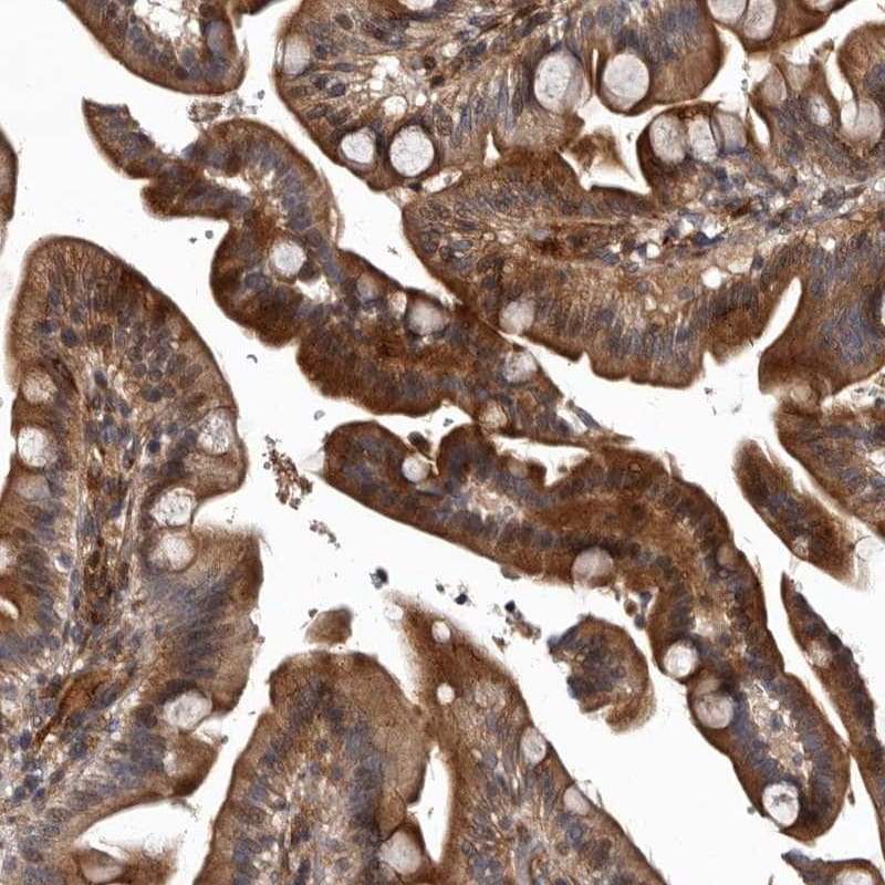 Immunohistochemistry (Formalin/PFA-fixed paraffin-embedded sections) - Anti-PKC nu/PRKD3 antibody (ab252982)