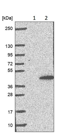 Western blot - Anti-CCRK antibody (ab252986)