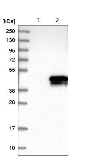 Western blot - Anti-EB2 antibody (ab253007)