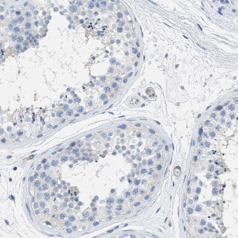 Immunohistochemistry (Formalin/PFA-fixed paraffin-embedded sections) - Anti-EB2 antibody (ab253007)