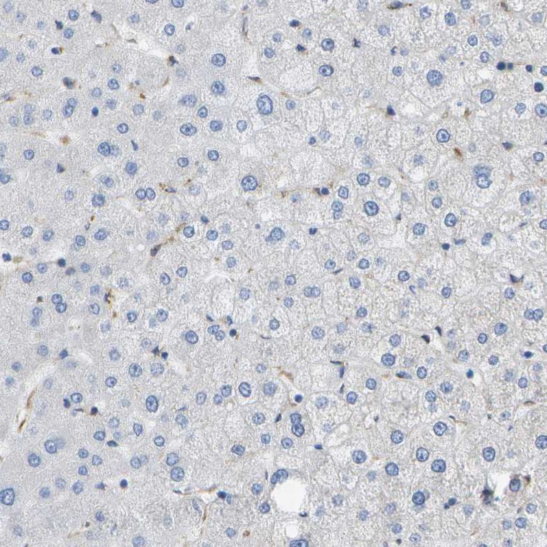 Immunohistochemistry (Formalin/PFA-fixed paraffin-embedded sections) - Anti-HIP14 antibody (ab253017)