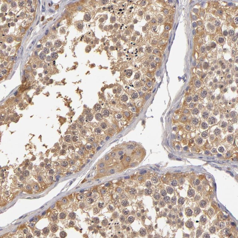 Immunohistochemistry (Formalin/PFA-fixed paraffin-embedded sections) - Anti-GNPDA1 antibody (ab253022)