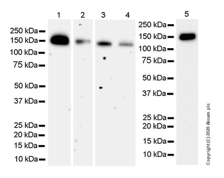 Western blot - Anti-Calcium channel L type DHPR alpha 2 subunit/CACNA2D1 antibody [EPR23267-8] (ab253190)