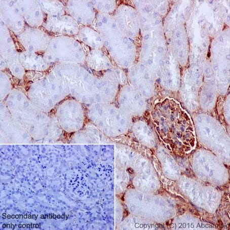 Immunohistochemistry (Formalin/PFA-fixed paraffin-embedded sections) - Anti-Vimentin antibody [EPR3776]