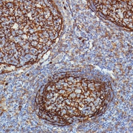 Immunohistochemistry (Formalin/PFA-fixed paraffin-embedded sections) - Anti-CD11b antibody [SP330] - C-terminal
