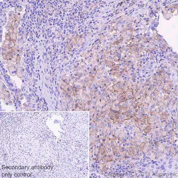 Immunohistochemistry (Formalin/PFA-fixed paraffin-embedded sections) - Anti-TIM 3 antibody [EPR22241]