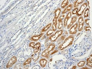 Immunohistochemistry (Formalin/PFA-fixed paraffin-embedded sections) - Anti-CD90 / Thy1 antibody [EPR3133]
