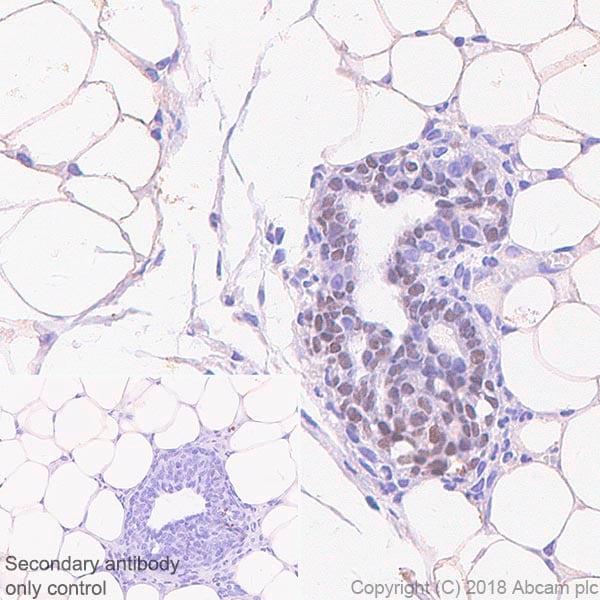 Immunohistochemistry (Formalin/PFA-fixed paraffin-embedded sections) - Anti-SOX10 antibody [SP267]