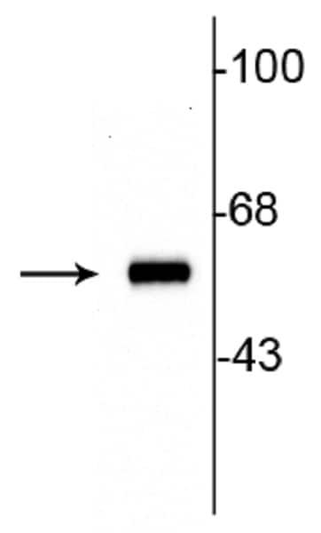 Western blot - Anti-Tyrosine Hydroxylase antibody (ab254029)