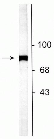 Western blot - Anti-N-ethylmaleimide-sensitive fusion protein antibody (ab254047)