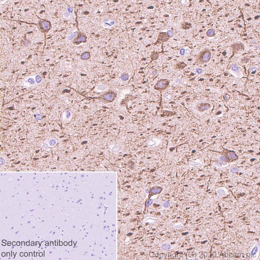 Immunohistochemistry (Formalin/PFA-fixed paraffin-embedded sections) - Anti-MAP2 antibody [AA6] (ab254144)