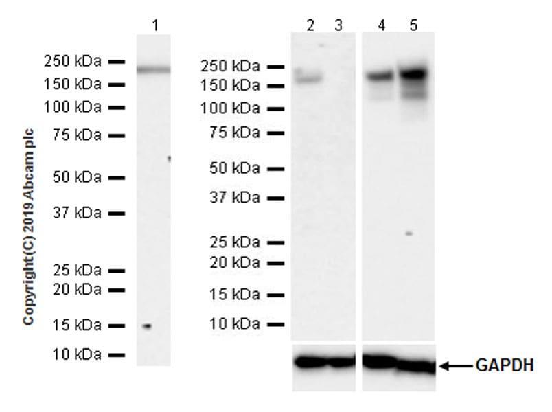 Recombinant Anti-Angiotensin Converting Enzyme 1 antibody