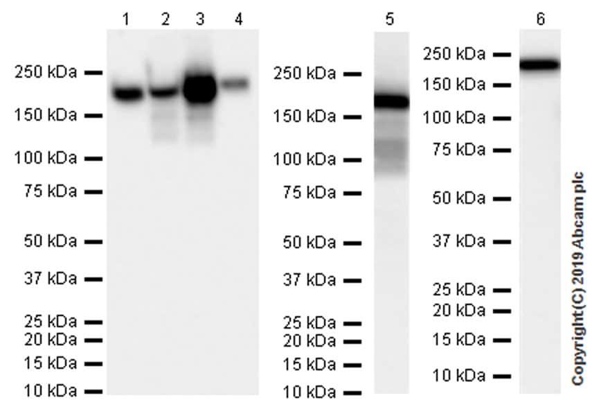 Western blot - Anti-Angiotensin Converting Enzyme 1 antibody [EPR22291-247] (ab254222)