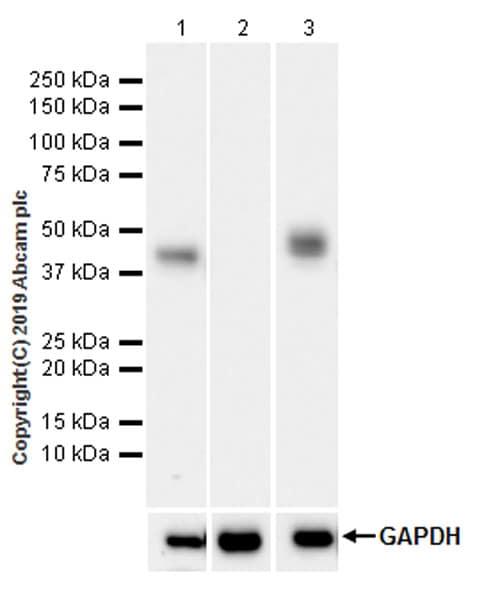 Western blot - Anti-Asialoglycoprotein Receptor 1/HL-1 antibody [EPR22642-17] (ab254262)