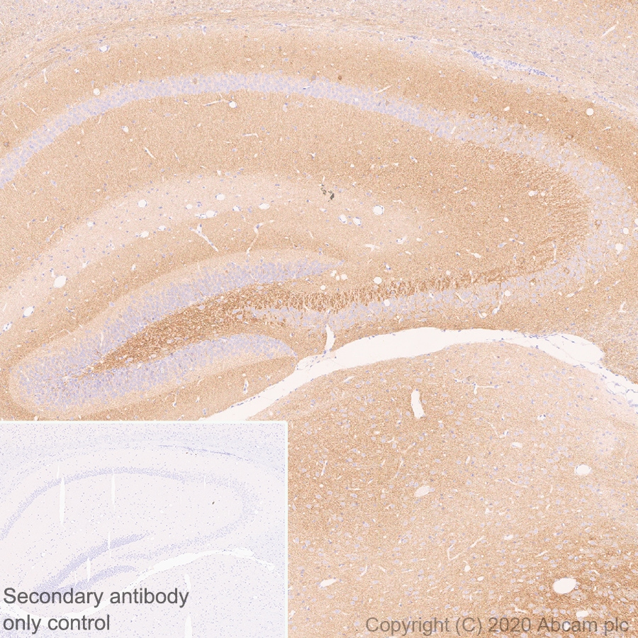 Immunohistochemistry (Formalin/PFA-fixed paraffin-embedded sections) - Anti-Kv1.1 potassium channel antibody [K20/78] - BSA and Azide free (ab254277)