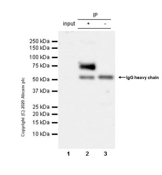 Immunoprecipitation - Anti-Serotonin transporter antibody [EPR23530-3] (ab254358)
