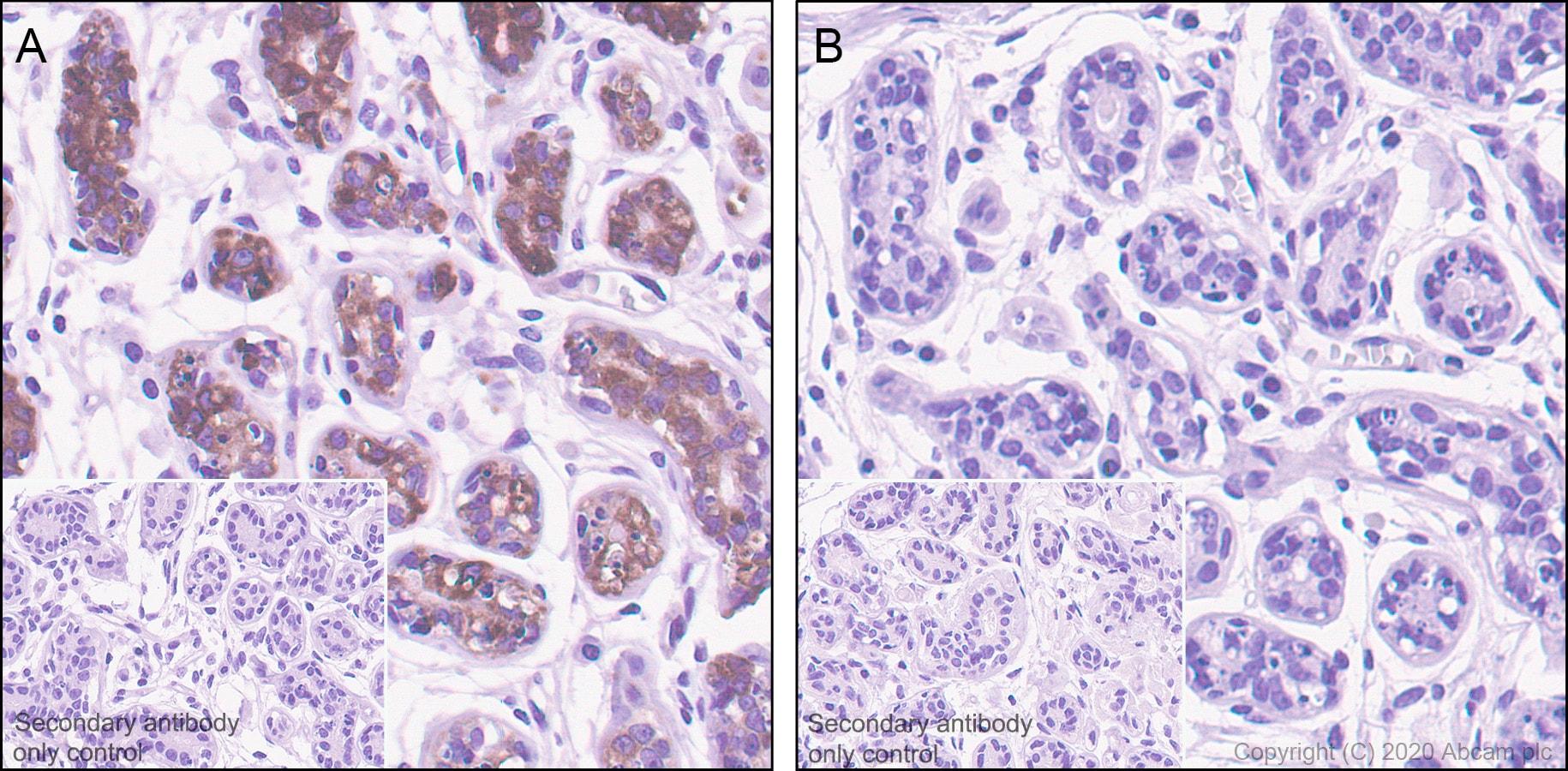 Immunohistochemistry (Formalin/PFA-fixed paraffin-embedded sections) - Anti-Tau (phospho T205) antibody [EPR23505-13] (ab254410)
