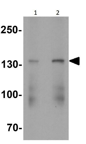 Western blot - Anti-VPS15 antibody (ab254573)