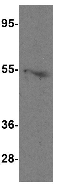 Western blot - Anti-LAG-3 antibody (ab254578)