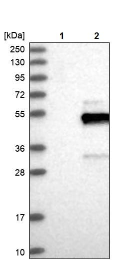 Western blot - Anti-TOSO antibody (ab254624)