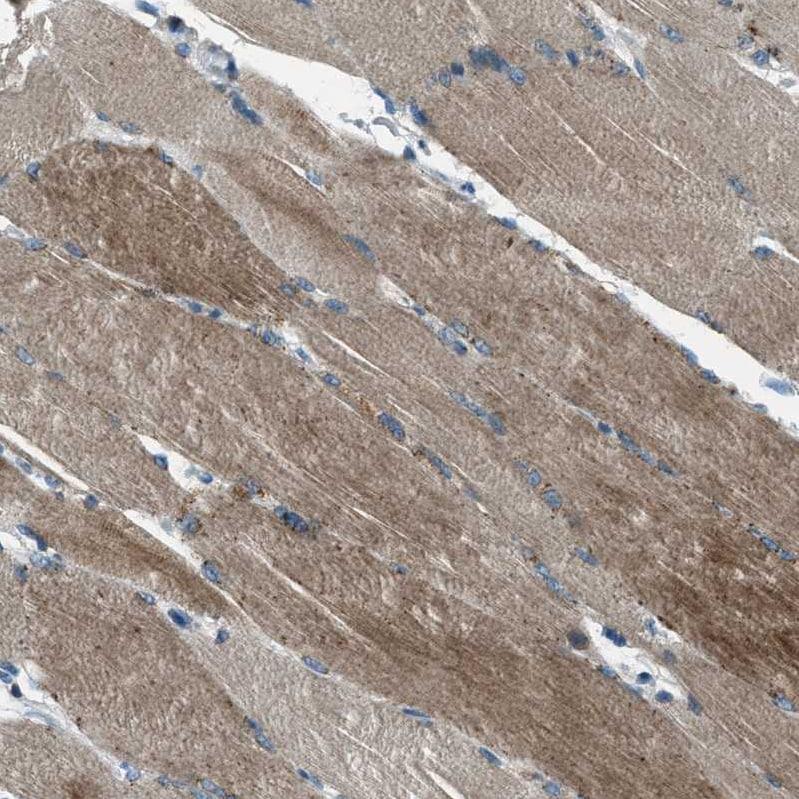 Immunohistochemistry (Formalin/PFA-fixed paraffin-embedded sections) - Anti-Supervillin antibody (ab254629)