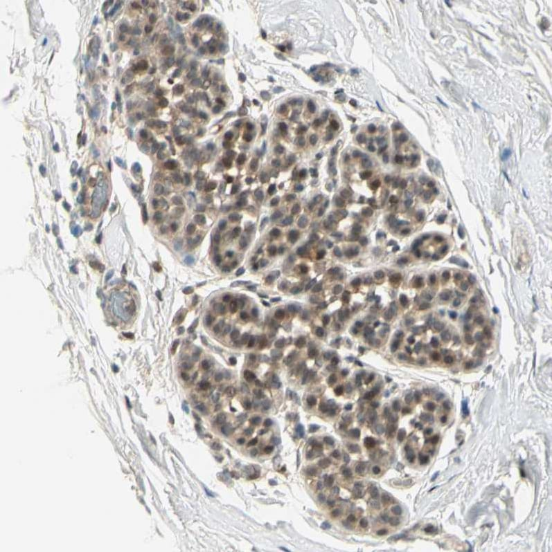 Immunohistochemistry (Formalin/PFA-fixed paraffin-embedded sections) - Anti-TFIIIA antibody (ab254632)
