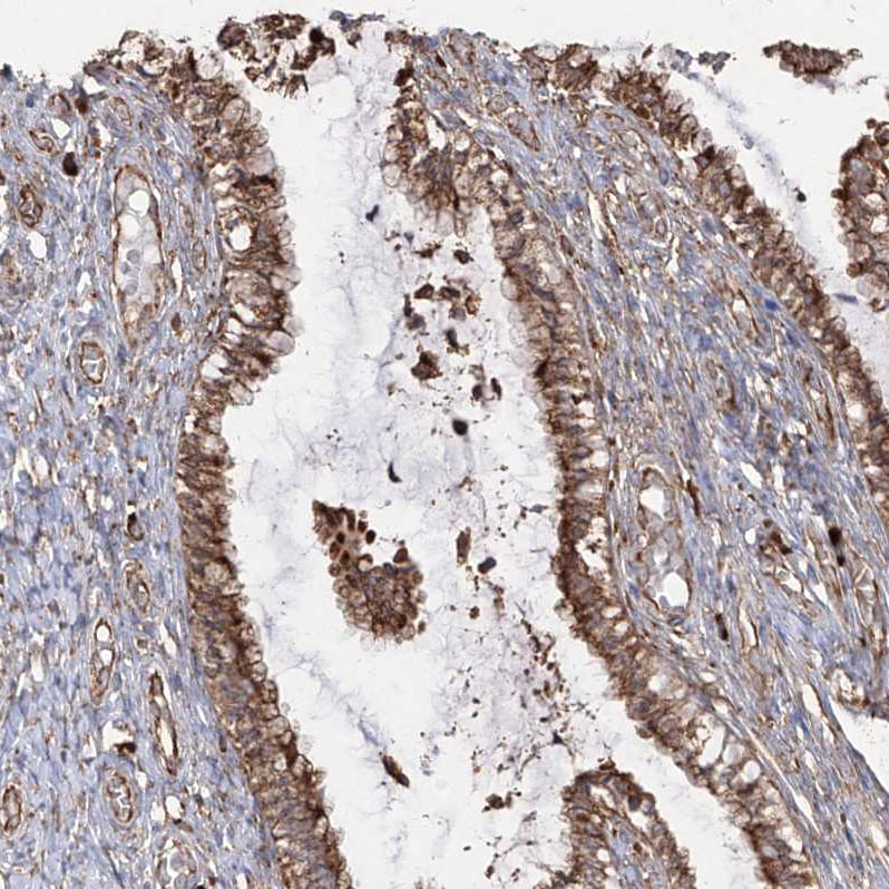Immunohistochemistry (Formalin/PFA-fixed paraffin-embedded sections) - Anti-RPS25 antibody (ab254671)