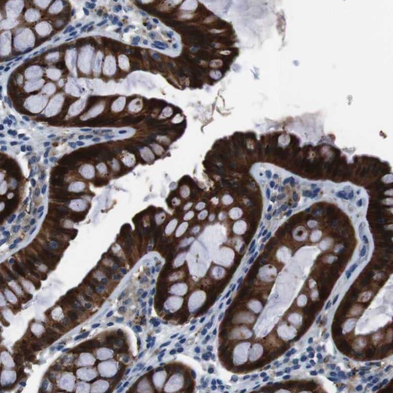 Immunohistochemistry (Formalin/PFA-fixed paraffin-embedded sections) - Anti-TULP3 antibody (ab254692)