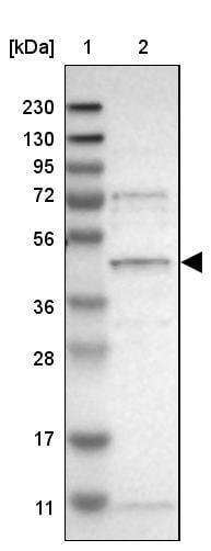 Western blot - Anti-SLC41A1 antibody (ab254754)