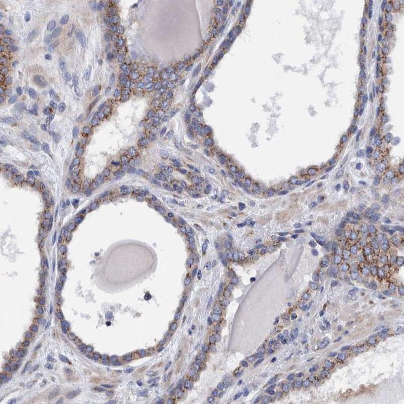 Immunohistochemistry (Formalin/PFA-fixed paraffin-embedded sections) - Anti-TRIM58 antibody (ab254768)