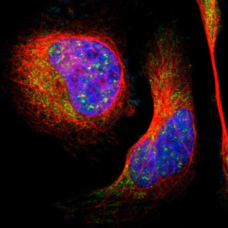 Immunocytochemistry/ Immunofluorescence - Anti-LHPP antibody (ab254788)