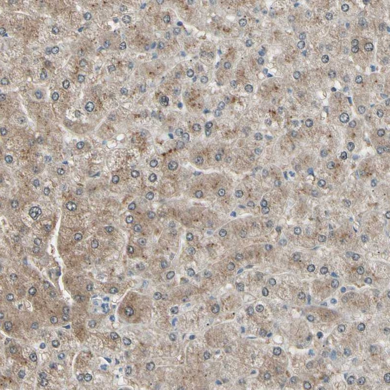 Immunohistochemistry (Formalin/PFA-fixed paraffin-embedded sections) - Anti-LHPP antibody (ab254788)