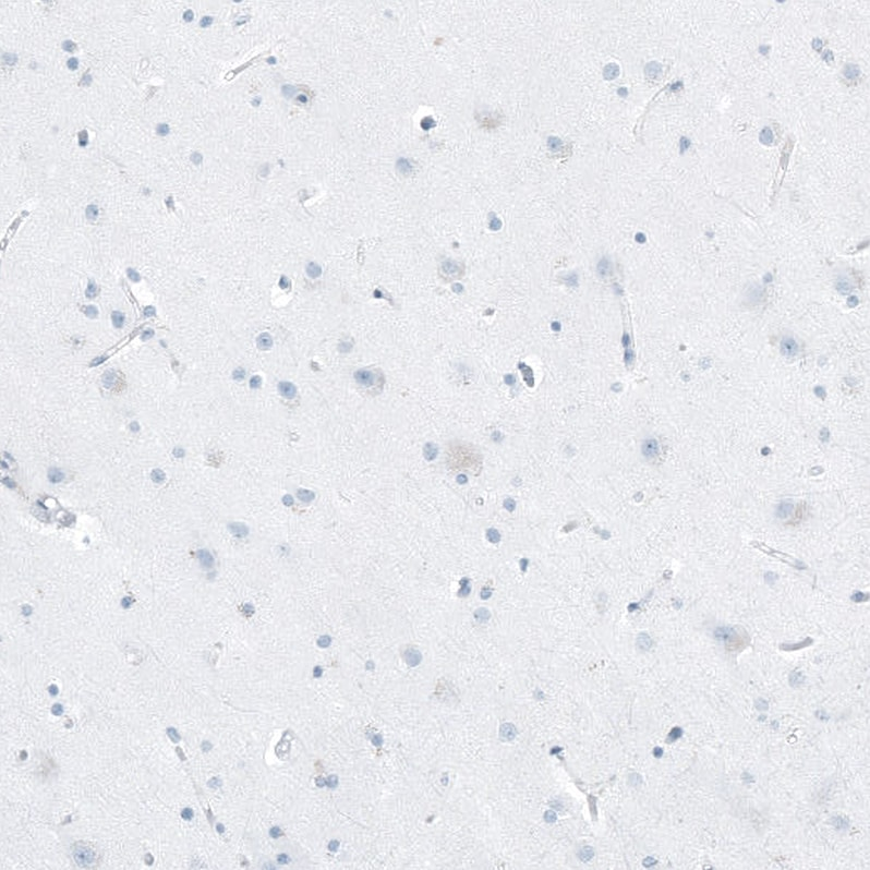 Immunohistochemistry (Formalin/PFA-fixed paraffin-embedded sections) - Anti-FAM161A antibody (ab254793)