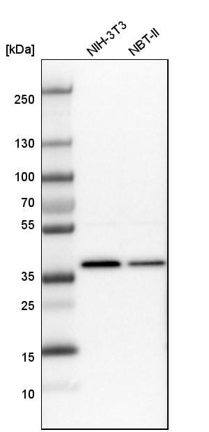 Western blot - Anti-SNRNP40 antibody (ab254796)