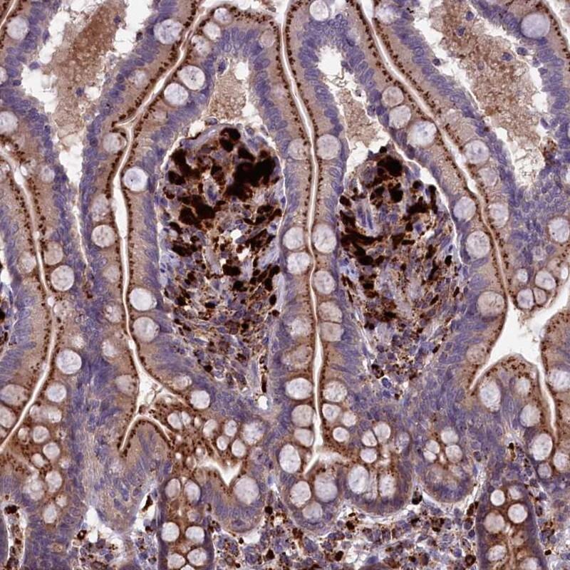 Immunohistochemistry (Formalin/PFA-fixed paraffin-embedded sections) - Anti-MAN2B1 antibody (ab254859)