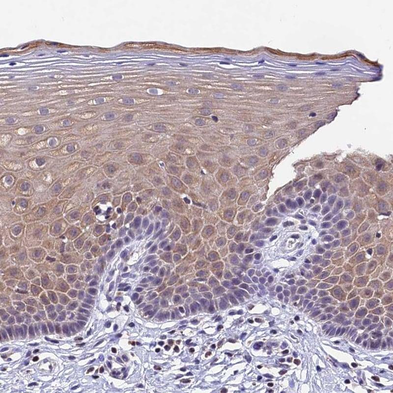 Immunohistochemistry (Formalin/PFA-fixed paraffin-embedded sections) - Anti-CARS2 antibody (ab254863)