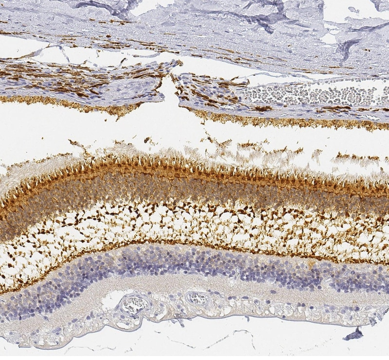 Immunohistochemistry (Formalin/PFA-fixed paraffin-embedded sections) - Anti-Retinal protein 4 antibody (ab254865)