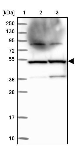Western blot - Anti-TADA3L antibody (ab254869)