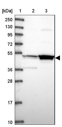 Western blot - Anti-MKKS antibody (ab254886)