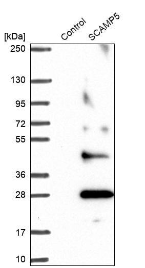 Western blot - Anti-SCAMP5 antibody (ab254900)