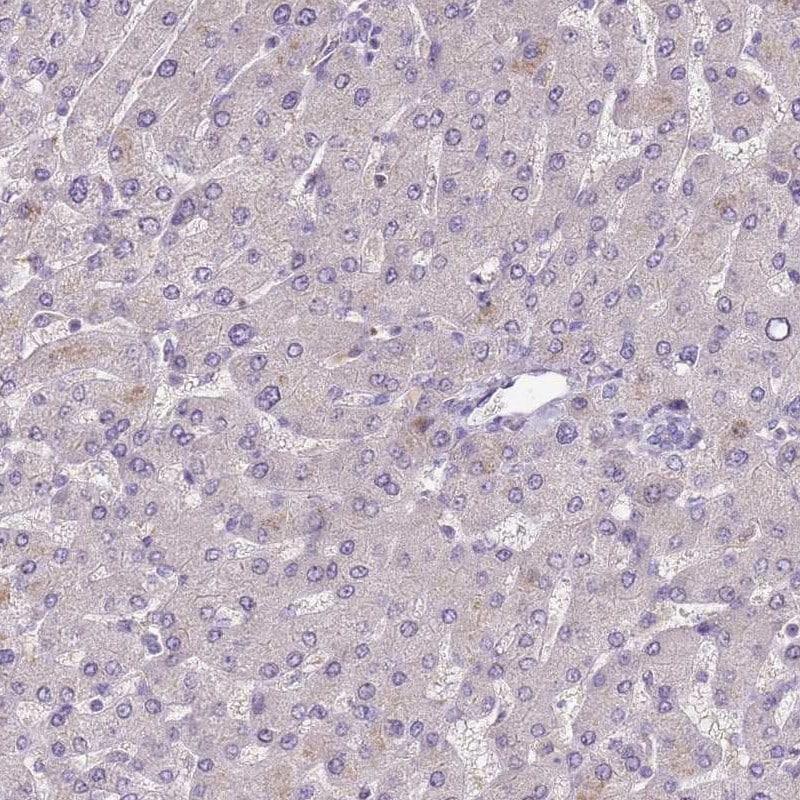 Immunohistochemistry (Formalin/PFA-fixed paraffin-embedded sections) - Anti-SCAMP5 antibody (ab254900)