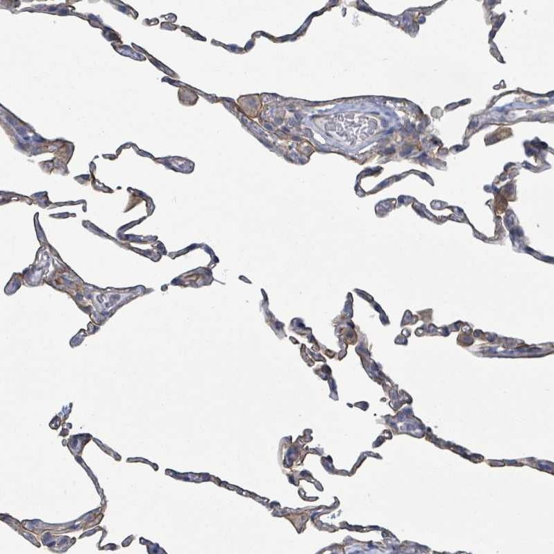 Immunohistochemistry (Formalin/PFA-fixed paraffin-embedded sections) - Anti-COL13A1 antibody (ab254926)