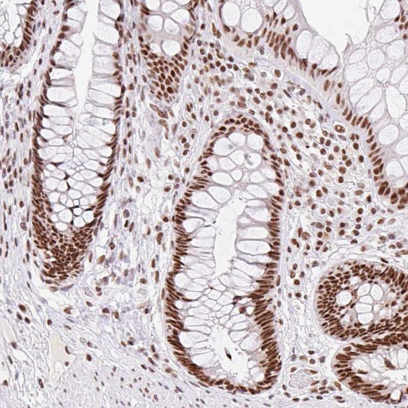 Immunohistochemistry (Formalin/PFA-fixed paraffin-embedded sections) - Anti-SRSF10 antibody (ab254935)