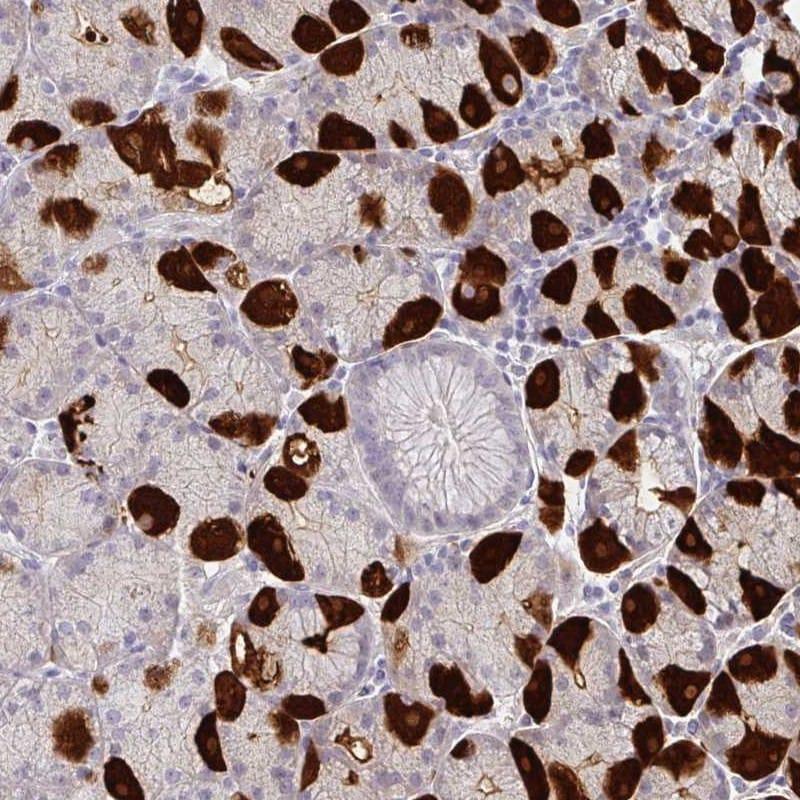 Immunohistochemistry (Formalin/PFA-fixed paraffin-embedded sections) - Anti-SF21 antibody (ab254946)